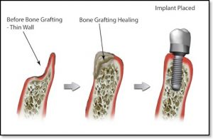bone-graft-with-dental-implant-thin-wall