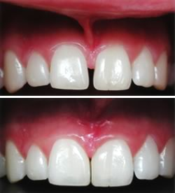 frenectomy-before-and-after