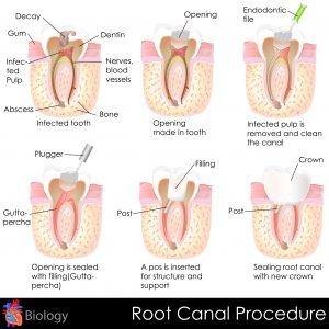 root canal treatment of tooth