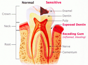 sensitive-teeth-diagram